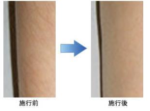 医療レーザー脱毛のイメージ